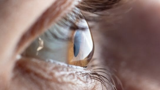 Macro picture of the eye. The cornea in the form of a cone, the disease of the eye keratoconus.