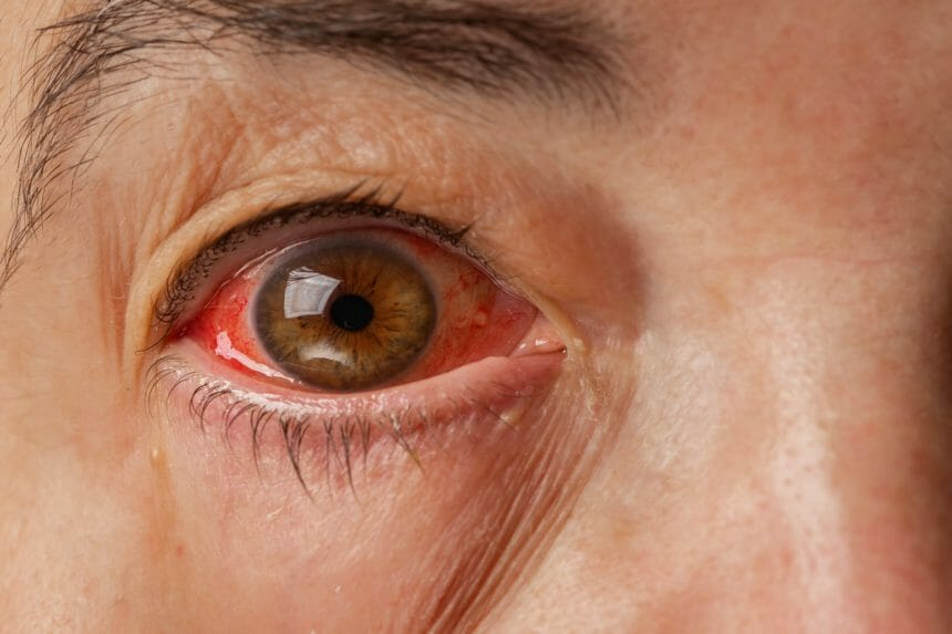 Close up of one annoyed red blood eye of mature adult women affected by conjunctivitis or after flu, cold or allergy
