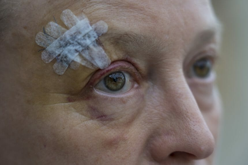 Woman with bruised eye and sterile strips on forehead